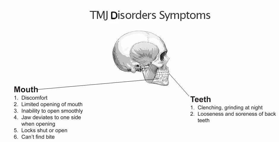 TMJ Disorders sypmtoms