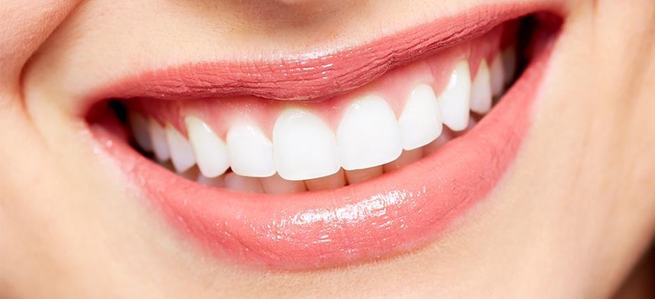 Teeth Whiteing Tips