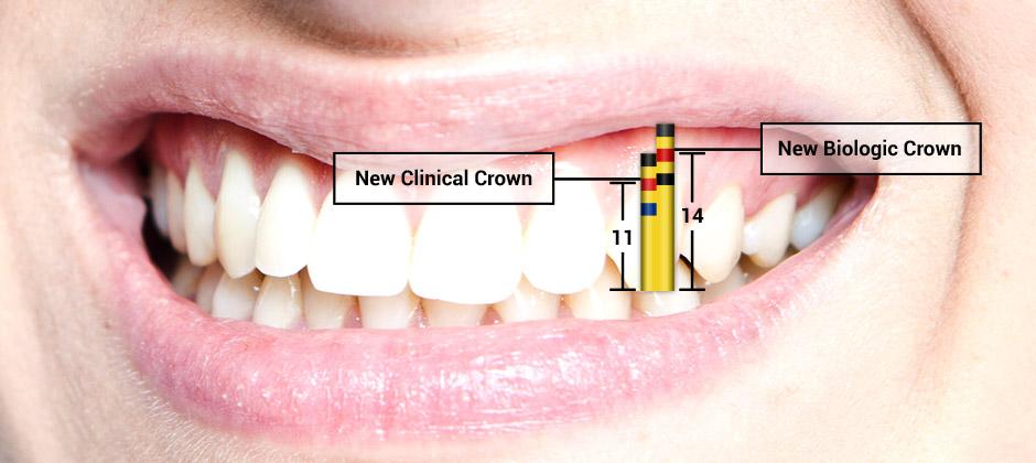 Gum lengthnening