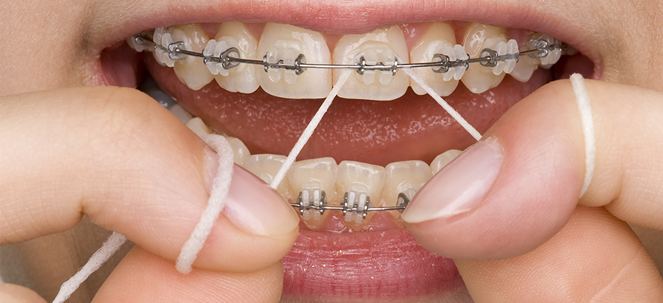 Dental Care with Braces